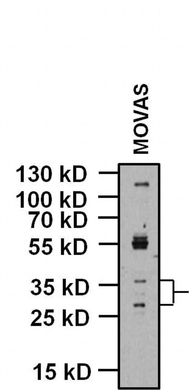 KCNMB1 Antibody in Western Blot (WB)