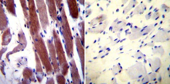 Parvalbumin Antibody in Immunohistochemistry (IHC)