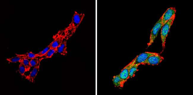 Calcium Sensing Receptor Antibody in Immunofluorescence (IF)