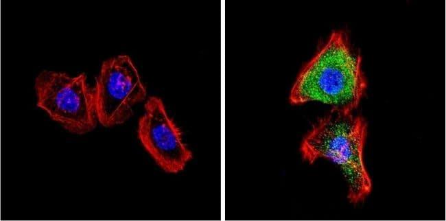 VDAC Antibody in Immunofluorescence (IF)