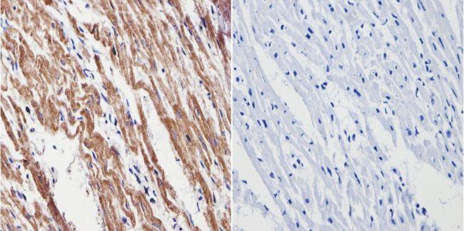 VDAC Antibody in Immunohistochemistry (Paraffin) (IHC (P))