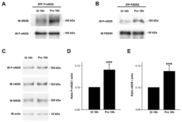 Phospho-nNOS (Ser1417) Antibody