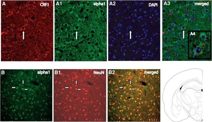 alpha-1a Adrenergic Receptor Antibody