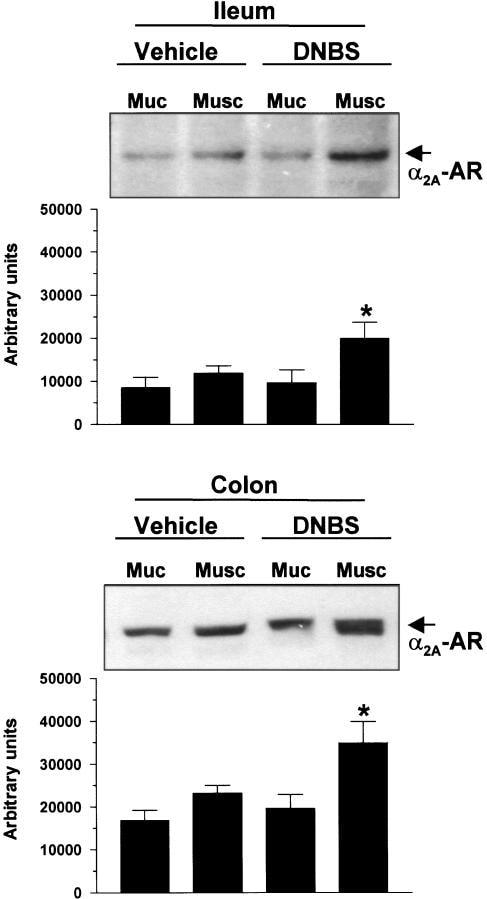 alpha-2a Adrenergic Receptor Antibody