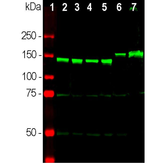 NEFM Antibody in Western Blot (WB)
