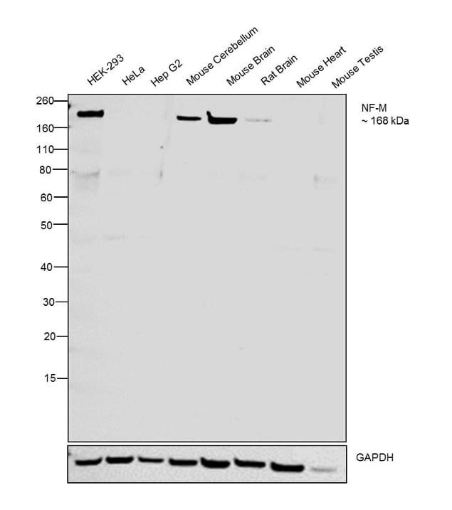 NEFM Antibody in Relative expression
