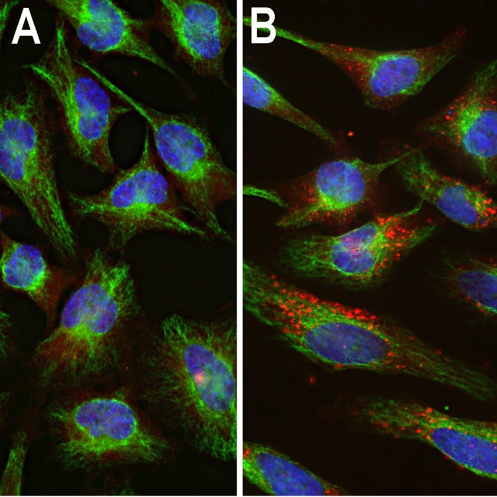 Ubiquitin Antibody in Immunofluorescence (IF)