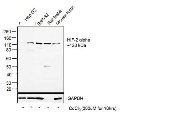 HIF-2 alpha Antibody in Cell treatment