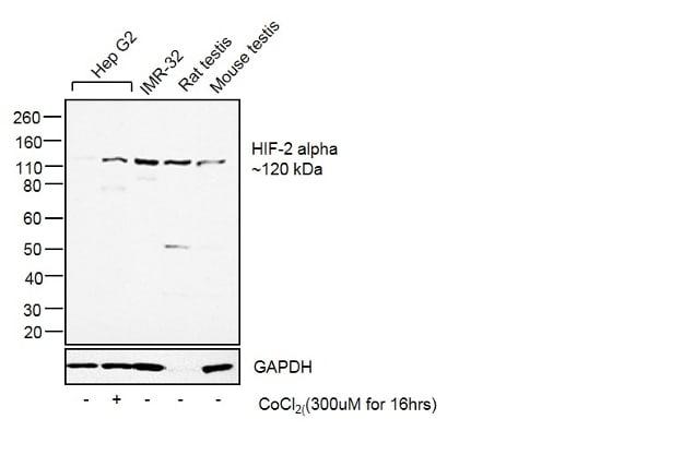 HIF-2 alpha Antibody in Western Blot (WB)
