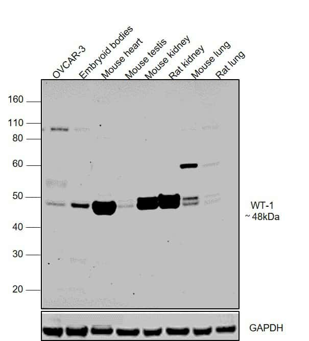 WT1 Antibody in Western Blot (WB)