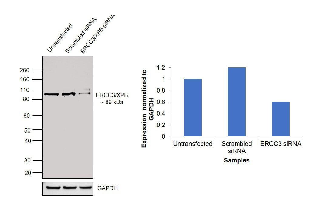 XPB Antibody in Western Blot (WB)