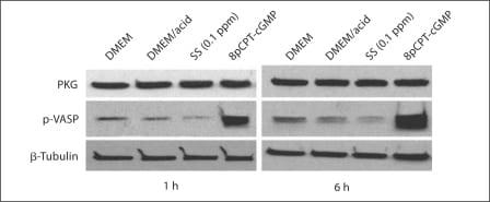 cGKI Antibody