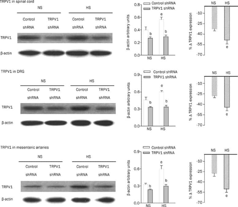 TRPV1 Antibody