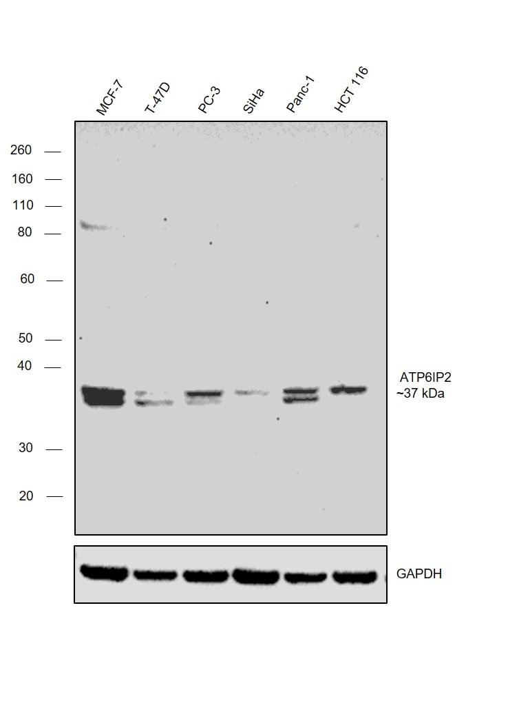 ATP6IP2 Antibody in Western Blot (WB)