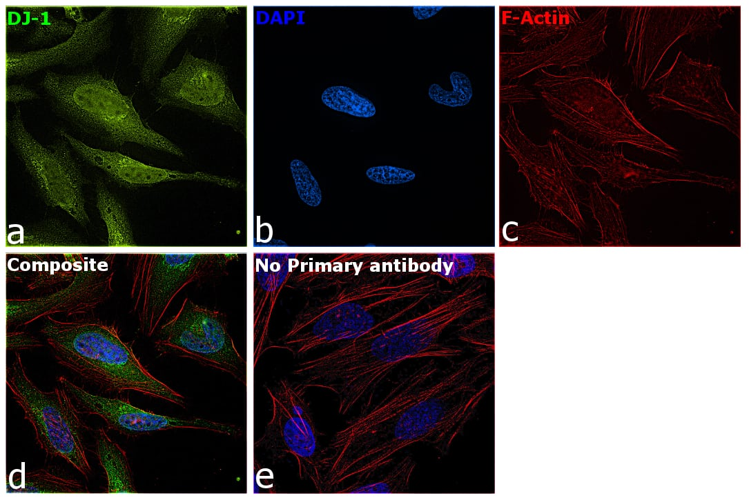 DJ-1 Antibody in Immunocytochemistry (ICC/IF)