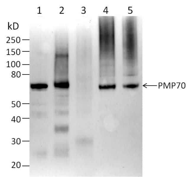PMP70 Antibody in Western Blot (WB)