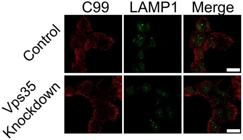 LAMP1 Antibody in Immunofluorescence (IF)