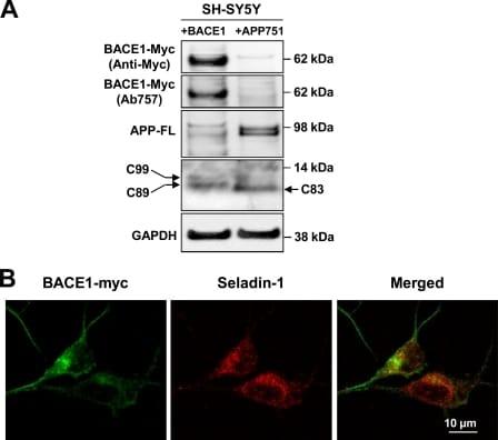 BACE1 Antibody