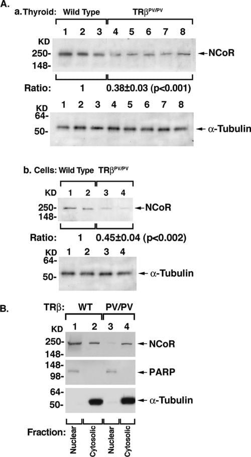 NCoR1 Antibody