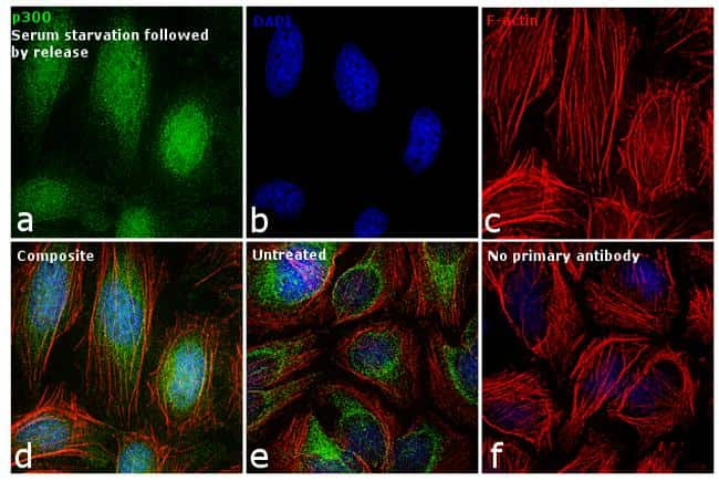 p300 Antibody in Cell Treatment
