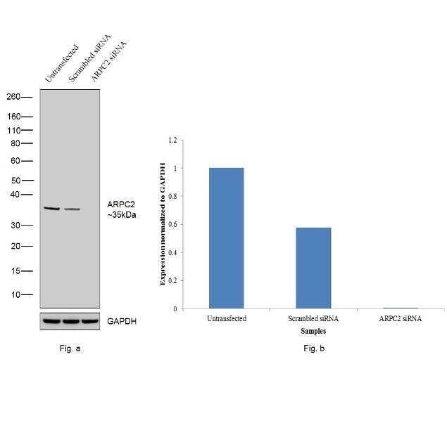 ARPC2 Antibody in Western Blot (WB)