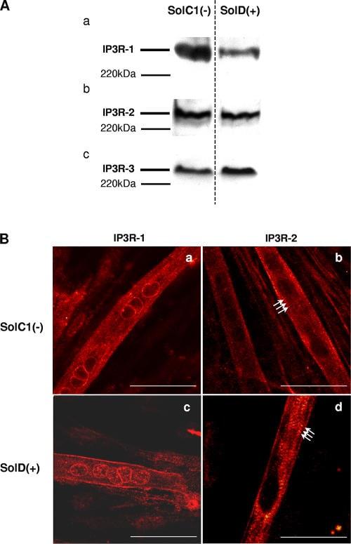 IP3 Receptor 2 Antibody