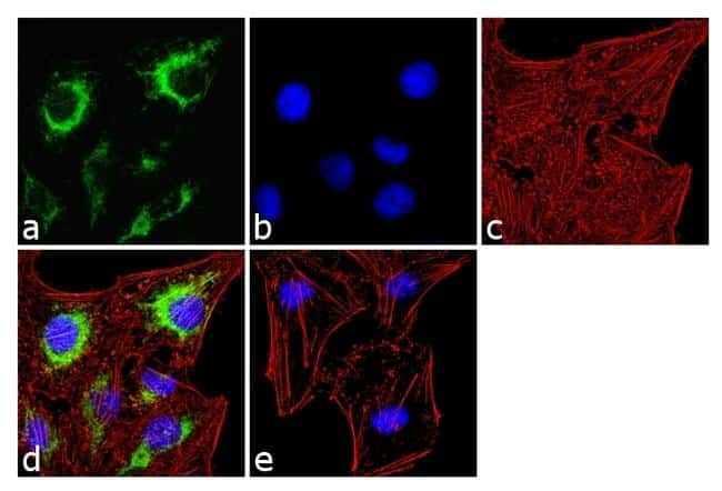 IP3 Receptor 2 Antibody in Immunofluorescence (IF)