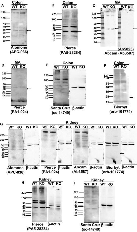 KCNMB1 Antibody