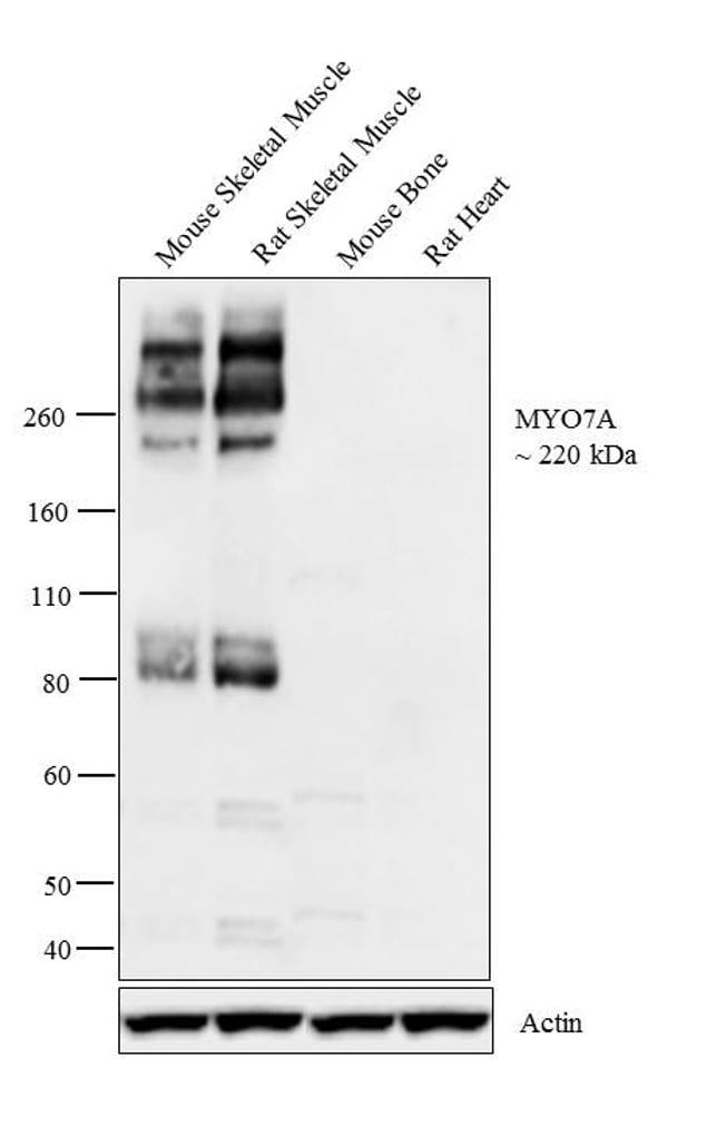 MYO7A Antibody in Western Blot (WB)
