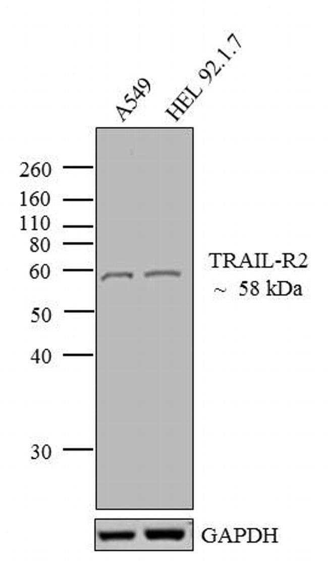 DR5 Antibody in Western Blot (WB)