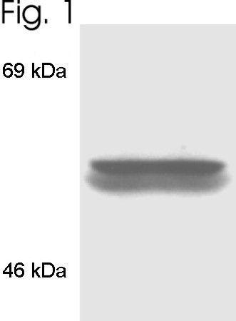 FKBP4 Antibody in Western Blot (WB)