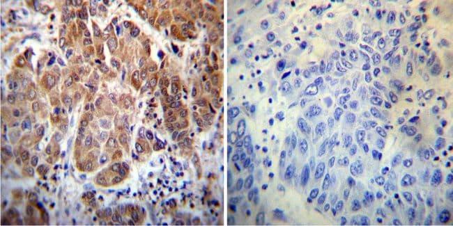 Cyclophilin 40 Antibody in Immunohistochemistry (IHC)