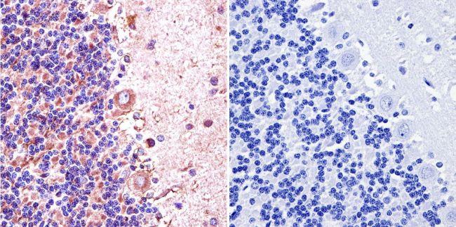 nNOS Antibody in Immunohistochemistry (IHC)
