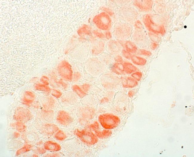 Endothelin A Receptor Antibody in Immunohistochemistry (IHC)