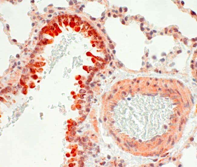 Endothelin B Receptor Antibody in Immunohistochemistry (IHC)