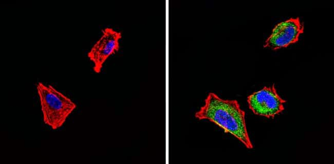 SSTR4 Antibody in Immunofluorescence (IF)
