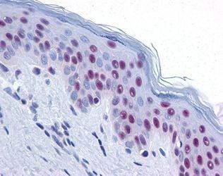 MRE11 Antibody in Immunohistochemistry (IHC)