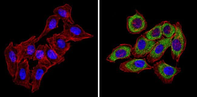 CXCR4 Antibody in Immunofluorescence (IF)