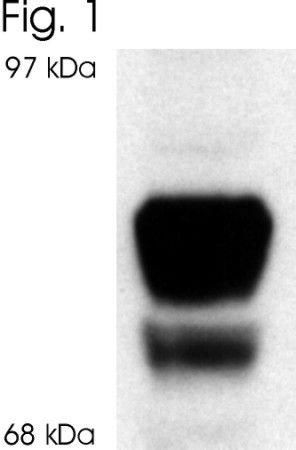 Glucocorticoid Receptor beta Antibody in Western Blot (WB)