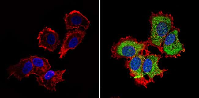 IGF2R Antibody in Immunocytochemistry (ICC/IF)