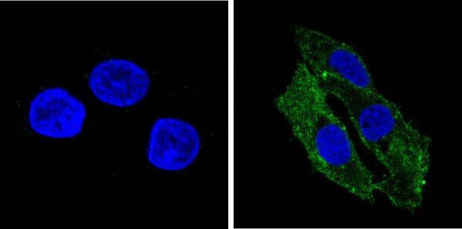 Transferrin Antibody in Immunofluorescence (IF)