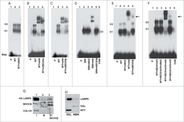 SEC61B Antibody