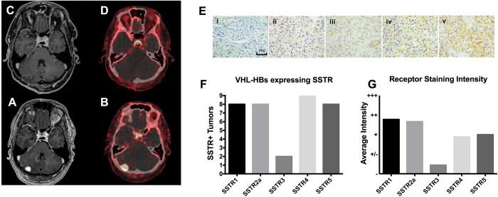 SSTR2 Antibody