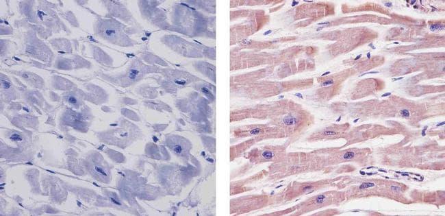 SIRT2 Antibody in Immunohistochemistry (Paraffin) (IHC (P))