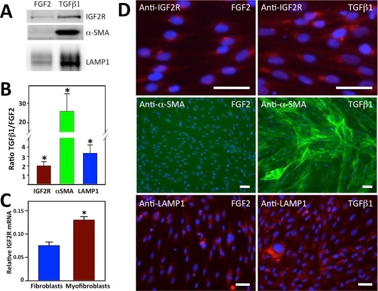IGF2R Antibody
