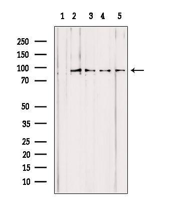PYGL Antibody in Western Blot (WB)