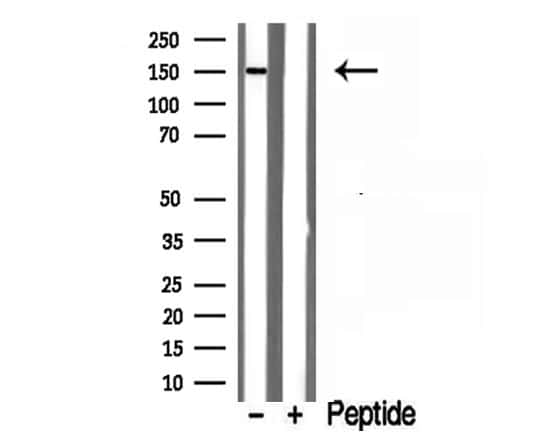 RPGRIP1L Antibody in Western Blot (WB)