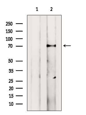 VPS33B Antibody in Western Blot (WB)
