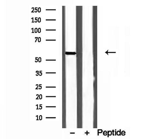 CYP26B1 Antibody in Western Blot (WB)
