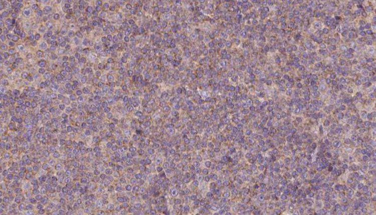 MDH1 Antibody in Immunohistochemistry (Paraffin) (IHC (P))